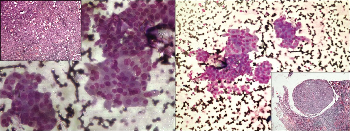 Figure 3a: Cytological aspirate revealing flat cohesive sheets of Hürthle cells with mild nuclear pleomorphism led to diagnosis of Hürthle cell neoplasm (MGG, ×400). Inset: follow up histology showed extensive oxyphilic change in colloid goiter (Inset; H and E, ×100)