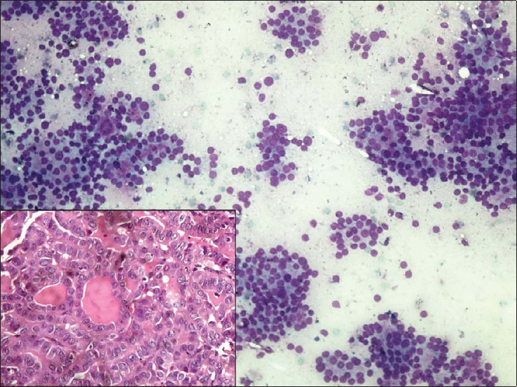 Figure 5: Marked cellular aspirate exhibiting microfollicular pattern with crowding and overlapping of nuclei and absence of colloid, interpreted as follicular adenoma (MGG, ×200). Inset: the follow up histology showed follicular variant of papillary thyroid carcinoma exhibiting exclusive follicular growth pattern displaying nuclear features of papillary thyroid carcinoma (Inset; H and E, ×400)