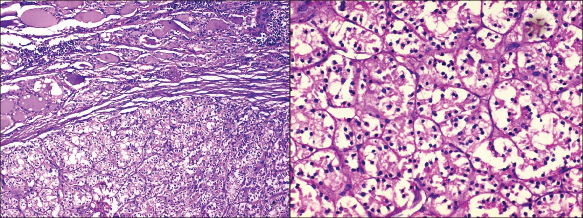 Figure 2a: Photomicrograph showing an encapsulated lesion composed of cells arranged in organoid, acinar and pseudoglandular pattern separated by thin fibrovascular septae. The peripheral thyroid gland showing lymphoid aggregates. (H and E, ×100)