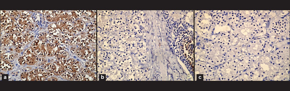 Figure 3: Photomicrograph showing (a) Chromogranin immunostain showing cytoplasmic positivity (Chromogranin, ×100), (b) CD10 immunomarker showing negativity in the tumor cells. Also note the germinal center staining of the lymphoid follicle in the adjacent thyroid acting as internal control. (CD10, ×100), (c) EMA immunostaining showing negativity in the tumor cells (EMA, ×100).