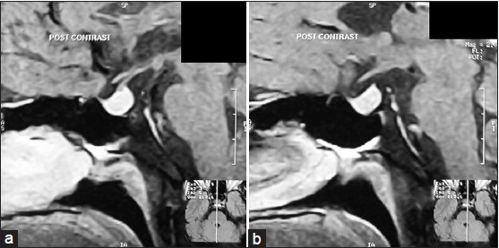 Figure 3: Magnetic resonance image showing pituitary hyperplasia