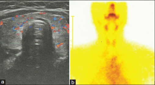 Figure 1: Ultrasonography thyroid showing normal vascularity (a) and tracer uptake on the pertechnate scan (b)