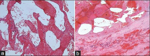 Figure 3: (a) Photomicrograph showing cavernous vascular spaces and compressed normal thyroid at periphery (hematoxylin and eosin (H and E), × 100).(b) Photomicrograph showing cavernous vascular spaces lined by flattened endothelial cells (H and E, × 400)