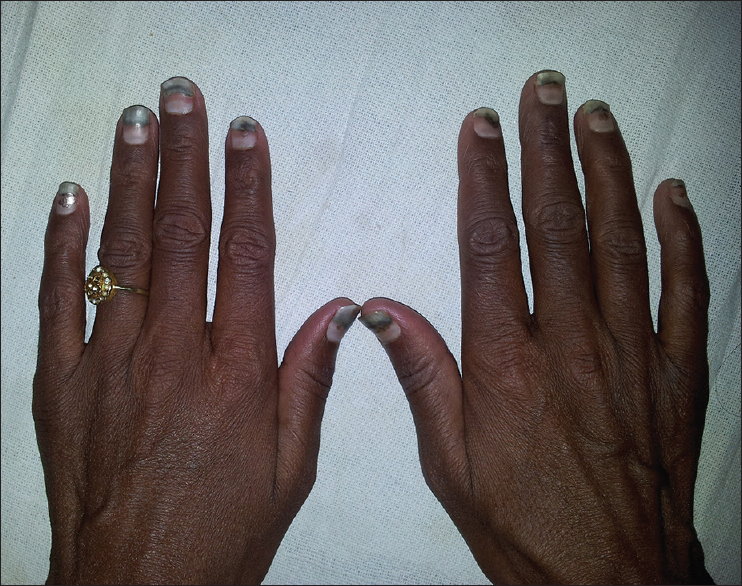 Dirty Nails In Hyperthyroidism Philip R Sivaraman Sc John Sm