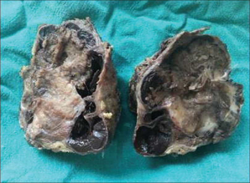 Figure 1: Resected thyroid gland on cut section showing a grayish white growth