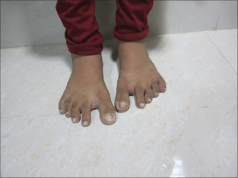 Figure 3: Sandal gap- a feature of down syndrome
