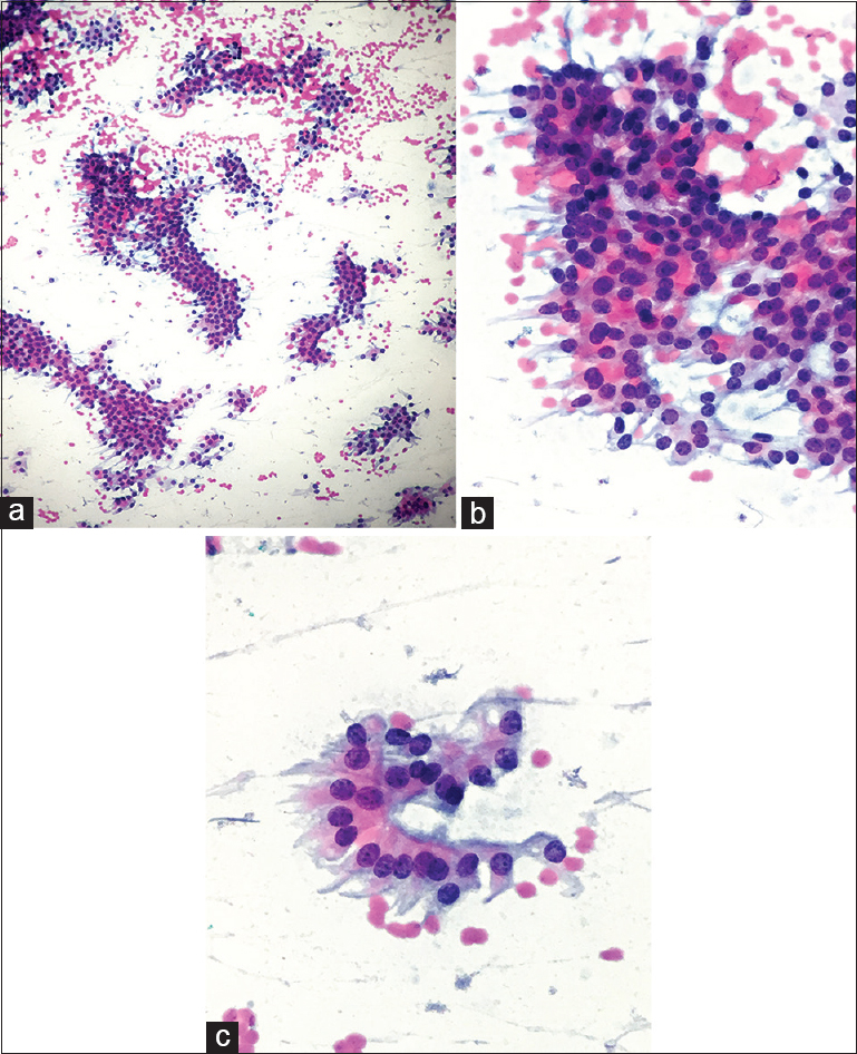 Figure 1: (a) Clusters and crowded groups of thyroid follicular cells with a papillary formation, ×10. (b) Tumor cells appear elongated with large, overlapping nuclei and nuclear grooves with abundant eosinophilic cytoplasm. (c) Tumor cells with elongated cytoplasm with nuclear overlapping and nuclear grooves, ×40