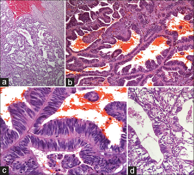 Figure 10: Left thyroid mass. (a) Malignant glands with a combination of tall columnar cells with pseudostratified nuclei as well as cell with follicular architecture, ×4. (b) Pseudostratified columnar cells with supranuclear and subnuclear cytoplasmic vacuoles, ×40. (c and d) Pseudostratified columnar cells with hyperchromatic nuclei, ×10 and × 40