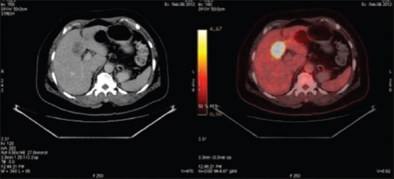 Figure 2: The computed tomography scan shows a heterogeneously enhancing lesion in segment IV of the liver. The corresponding positron emission tomography–computed tomography slice shows intense fluorodeoxyglucose uptake in the liver lesion