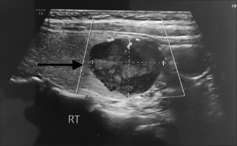 Figure 1:Ultrasound neck showing abnormal hypoechoic lesion within the right lobe of the thyroid